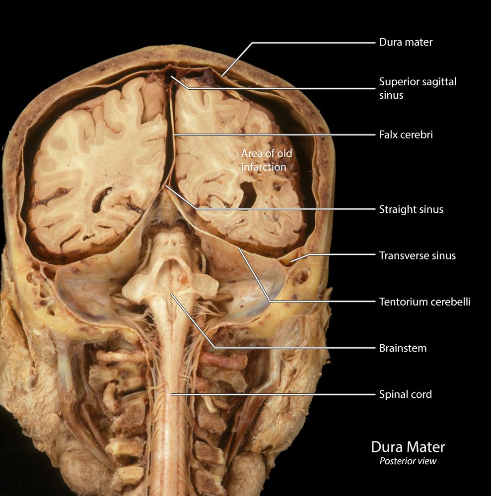 Dural Sinuses