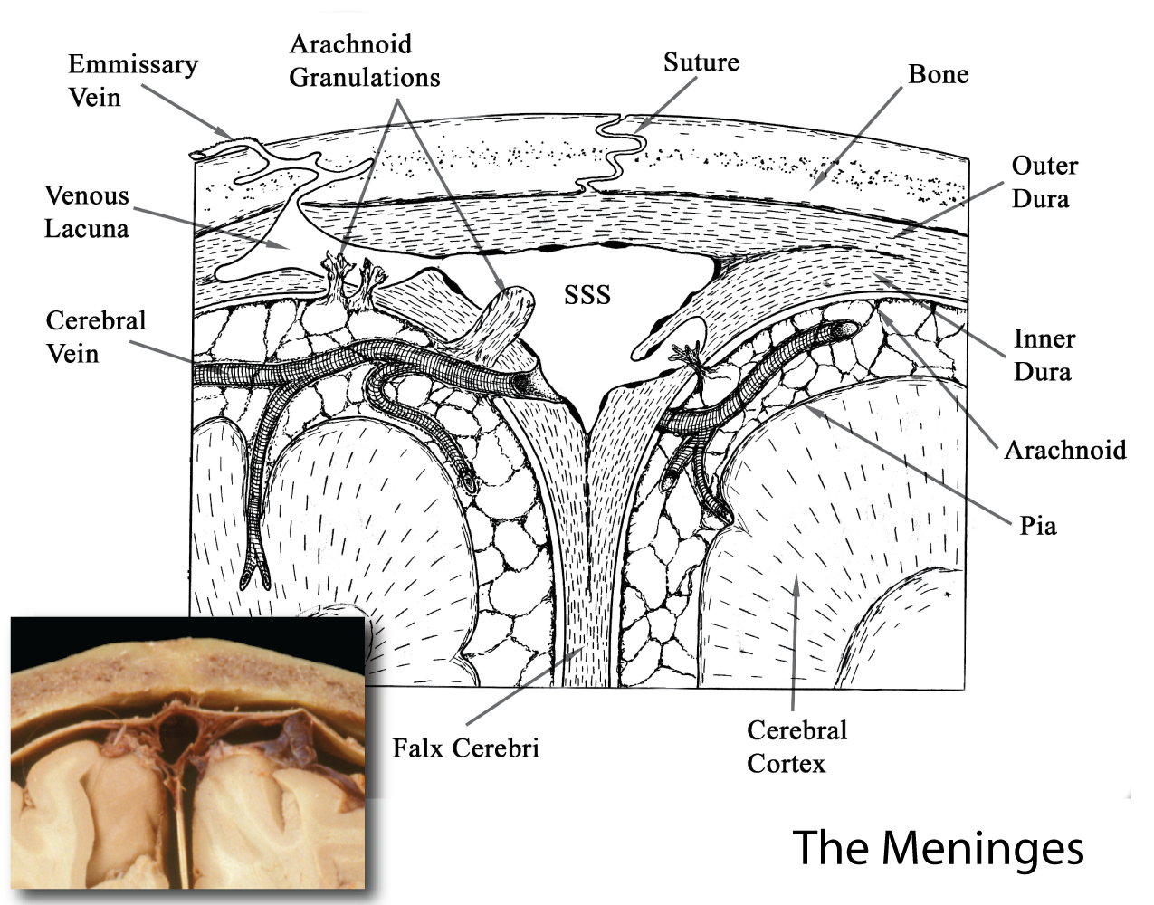 Meninges microarchitecture enlarge image in new window ccuart Images